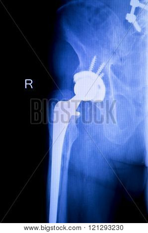 Hip Replacement Xray Orthopedic Medical Scan