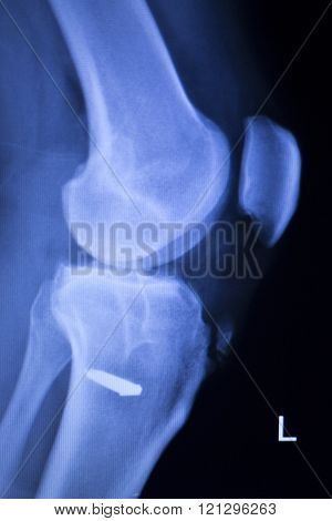 Knee Injury Screw Implant Xray Scan