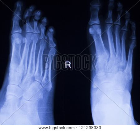 Foot And Toes Injury Xray Scan
