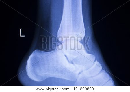 Foot Heel Ankle Injury Xray Scan