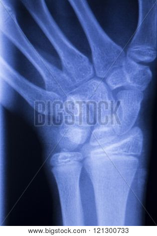 Hand Fingers Thumb Wrist Xray Scan