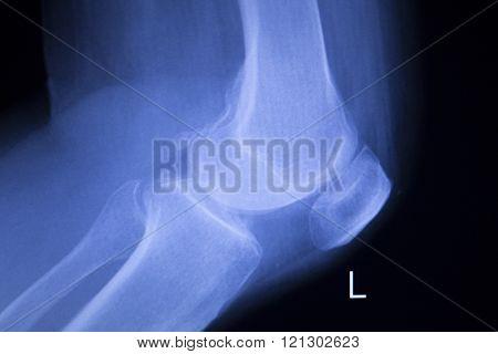 Knee And Meniscus Injury Xray Scan