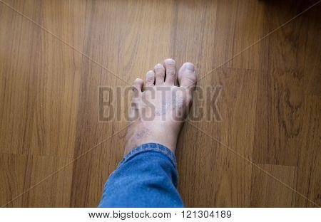 rash eczema on woman skin foot