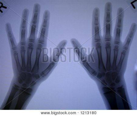 Bilateral Hand X-Rays Of A Child