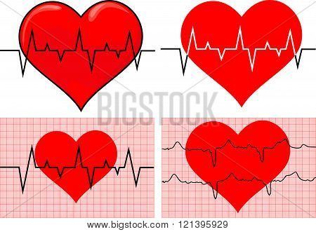 heart and electrocardiography