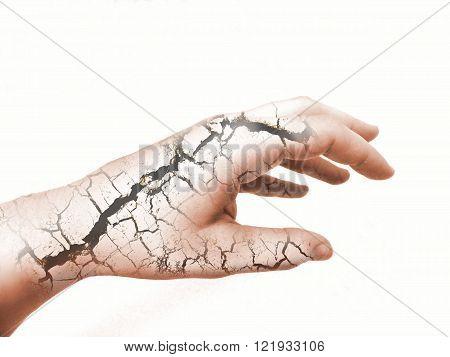 Photo manipulation of hand with dry broken skin