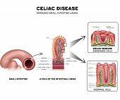 Celiac Disease Small Intestine Lining Damage poster