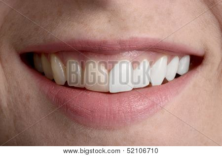 Pretty Smile, Dental Hygiene Before / After