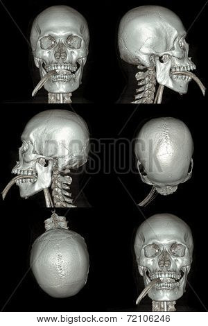 X-ray image of the skull computed tomography 3D