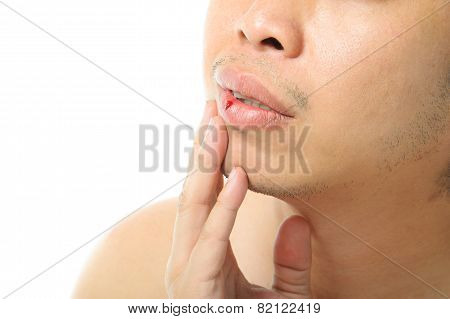 Mouth Injury Bleeding