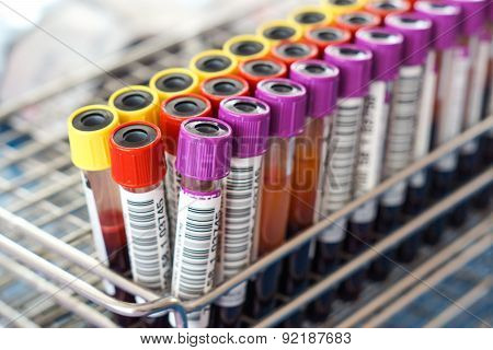 blood sample tubes