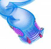 picture of anus  - Hemorrhoids  - JPG