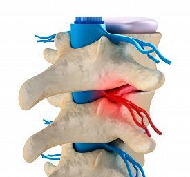 foto of herniated disc  - Spinal cord under pressure of bulging disc - JPG