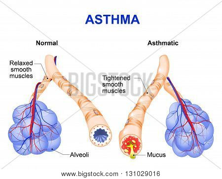 Asthma is a chronic inflammatory disease of the airways that is characterized by narrowing of the airways and dyspnea wheezing and coughing.