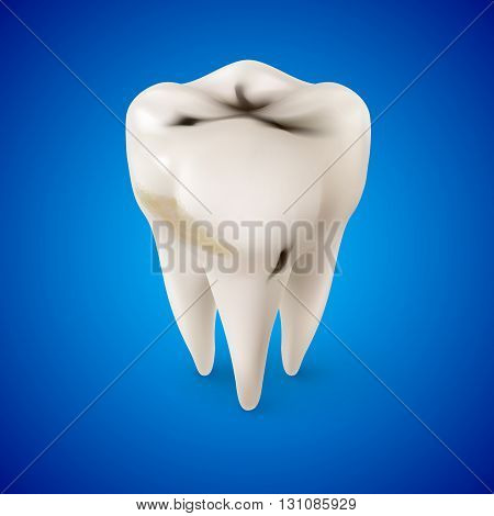 Isometric Concept of Human Tooth with Caries on Blue