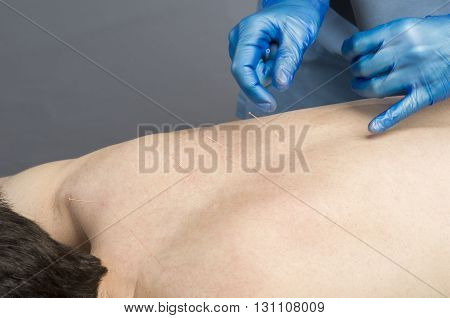 Chinese Medicine Doing Acupuncture To Man Patient