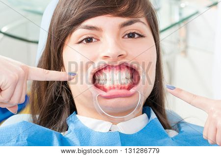 Beautiful Patient Face Wearing Mouth Retractor In Dentistry Office