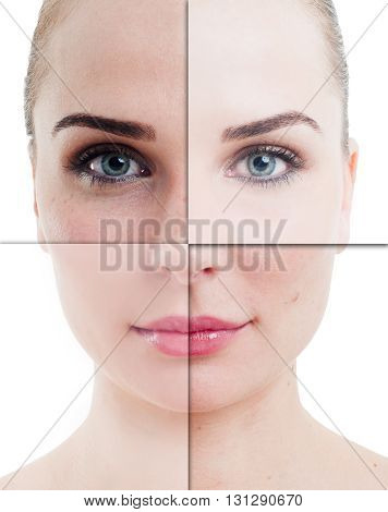 Woman Face Divided In Parts With Perfect And Imperfect Skin