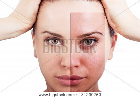 Flawless Woman Portrait Before And After Facial Correction