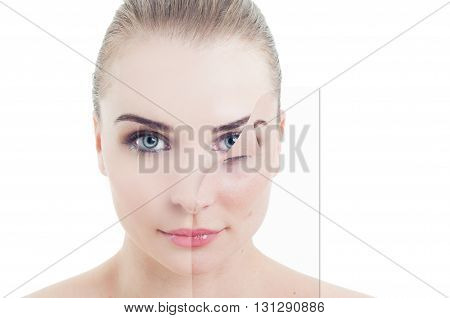 Portrait Of Beautiful Female With Problem And Perfect Skin