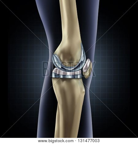 Knee replacement implant medical concept as a human leg anatomy after a prosthetic surgery as a musculoskeletal disease treatment symbol for orthopedics with 3D illustration elements.