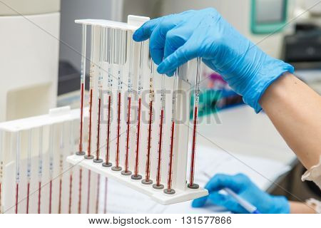 Blood Samples In Test Tubes In A Nurse's Hand.