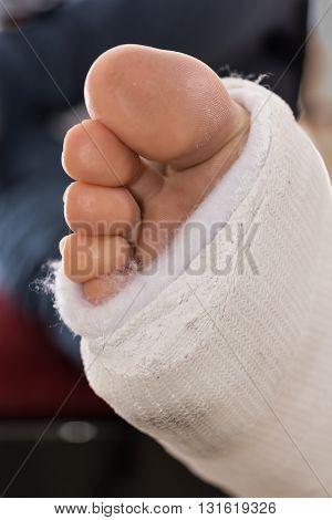 Fiberglass / Plaster Leg Cast