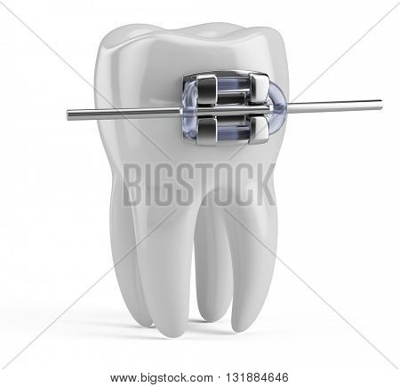Tooth with brace isolated on white. 3d render