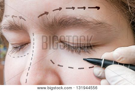 Facial Plastic Surgery. Hand Is Drawing Lines With Marker Around