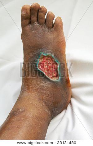 Trophic wound