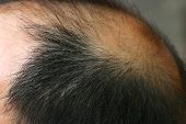 stock photo of male pattern baldness  - closeup of bald man - JPG