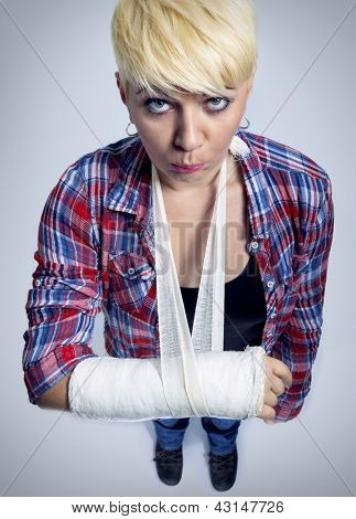 Young woman with a broken arm in  cast