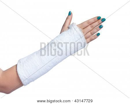close up of a broken arm in a plaster cast on a white background