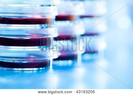 Petri dishes in the laboratory of the clinic