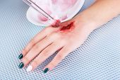 foto of pus  - Injured hand with blood on table in hospital - JPG