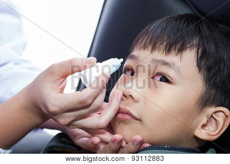Closeup Of Doctor Pouring Eye Drops In Eye Patient