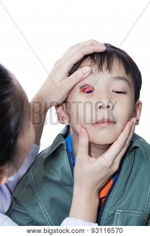 Pinkeye (conjunctivitis) Infection On A Boy, Doctor Check Up Eye Patient,isolated On White