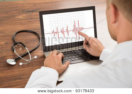 Doctor Looking At Heartbeat Cardiogram