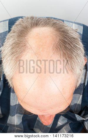 Hair loss. Bald man
