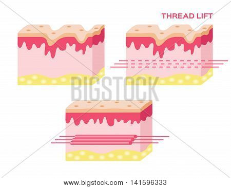 skin vector with step of thread lift , thread lift vector