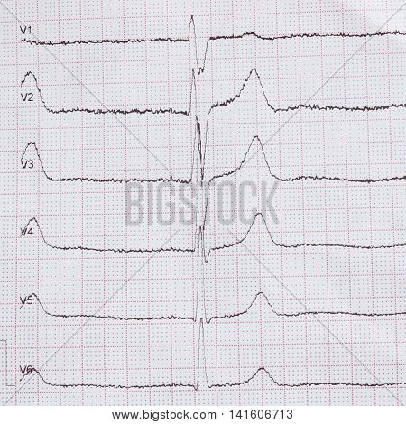 Cardiogram on paper. Shows heart rate monitor