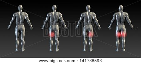 Hamstring Injury with Red Glow on Area Series 3d Render