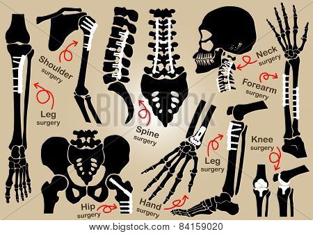 Collection Of Orthopedic Surgery ( Internal Fixation By Plate And Screw )