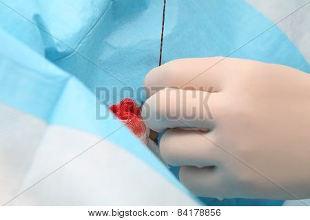 Surgeon Job  In The Operating Room