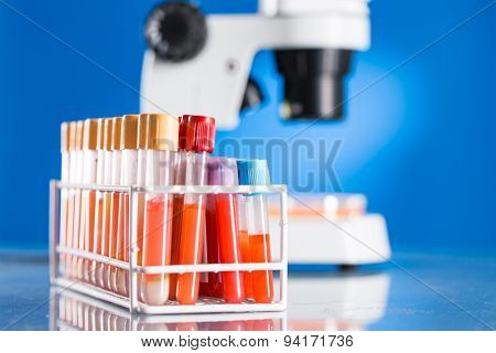 Blood test in medical laboratory, check sugar content diabetes risk