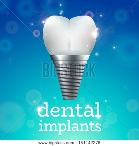 Dental Implant Logo Surgery Dentistry Vector Illustration. Medical Conception for Tooth Clinic.Sparkling Tooth Implant Clean Enamel on Blue Blur Pattern.Implant Crown and Abudment for Dental Clinic