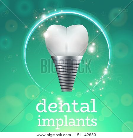 Dental Implant Logo Surgery Dentistry Vector Illustration. Medical Conception for Tooth Clinic.Sparkling Tooth Implant Clean Enamel on Green Blur Pattern.Implant Crown and Abudment for Dental Clinic