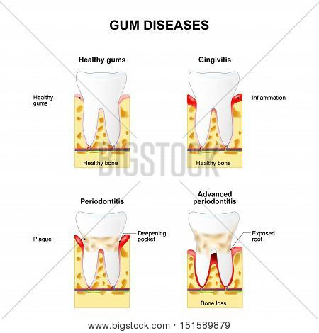 Gum disease: Gingivitis and Periodontitis. Gingivitis - the gums are swollen bone is healthy. Periodontitis - the gums are swollen and the bone is also inflamed.