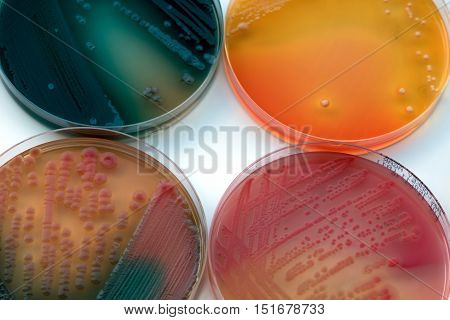 Bacterial Culture Growth On Selective Agar.