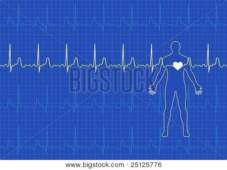 Illustration of electrical activity of the human heart